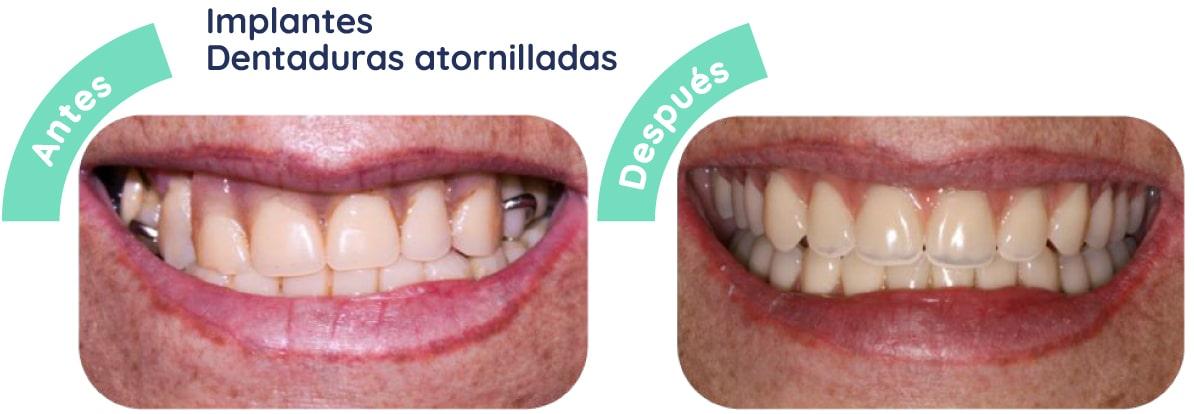 implantes dentaduras 1