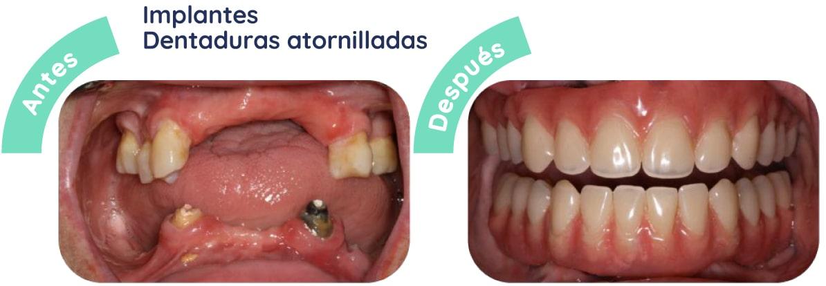 implantes dentaduras 2